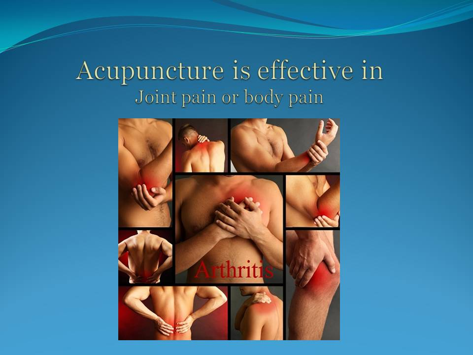 Acupuncture Slide Show